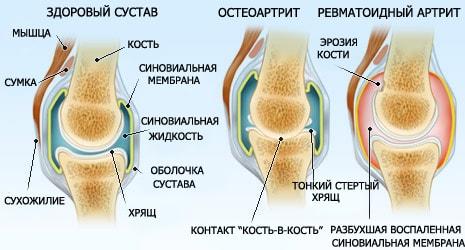 Изображение - Акулий хрящ для суставов из финляндии sustav-dvetabletki